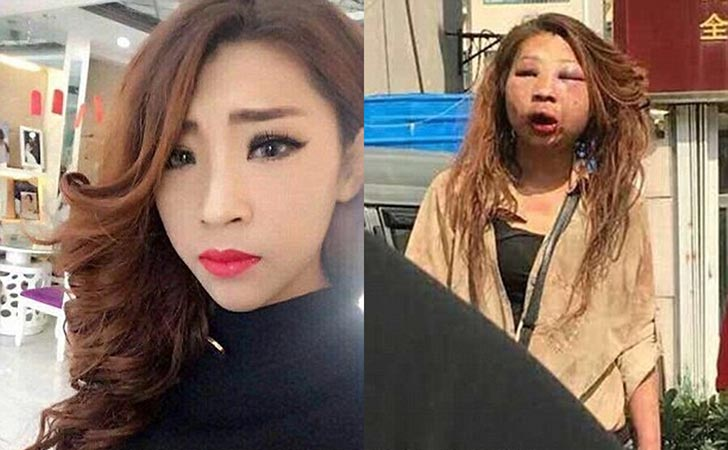 Đánh ghen đến biến dạng khuôn mặt Hotgirl Trung Quốc