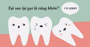 Tại sao lại gọi là răng khôn? Răng khôn có tác dụng gì?